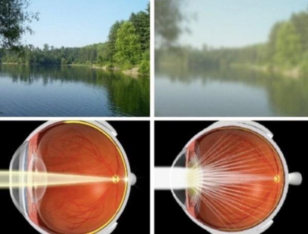 Нарушение видения