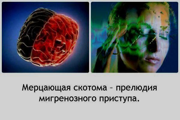 Мерцающая разновидность поражения глаза