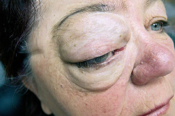 Рак глазного органа