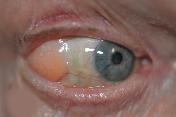 Глазная киста