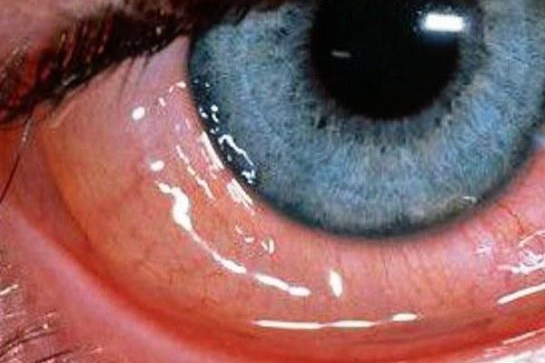 Аденовирусный конъюнктивит глаза