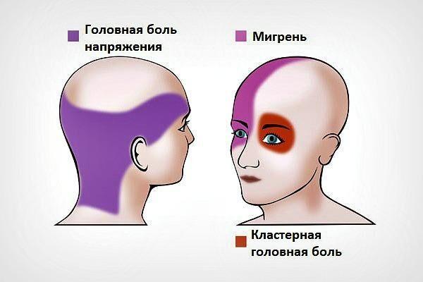 Диагностика головной и глазной боли