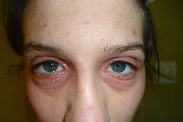 Аллергия на веке