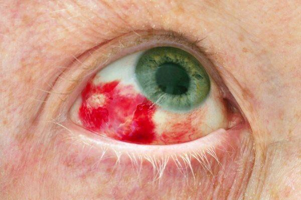 Кровоизлияние в конъюнктиву