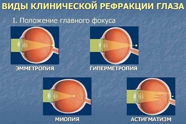 Виды рефракции