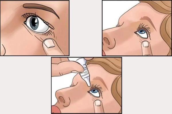 Схема закапывания глазных капель