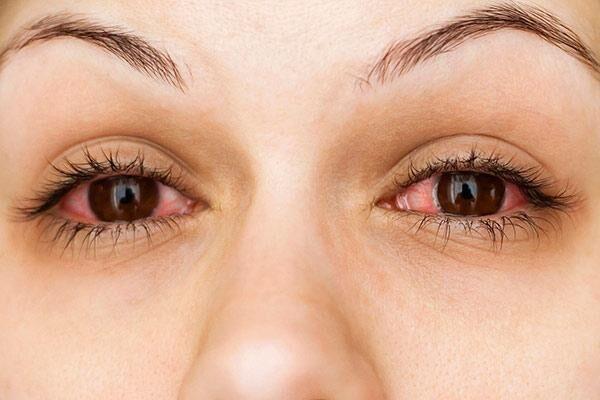 Бытовая аллергия
