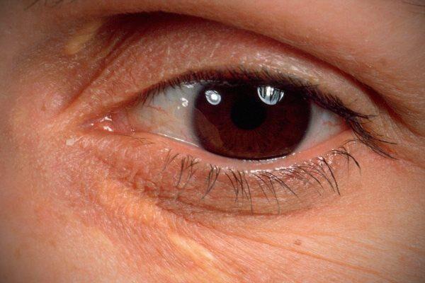 Под глазами желтые пятна