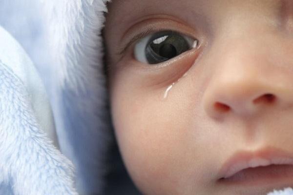 Закисание глаза у ребенка