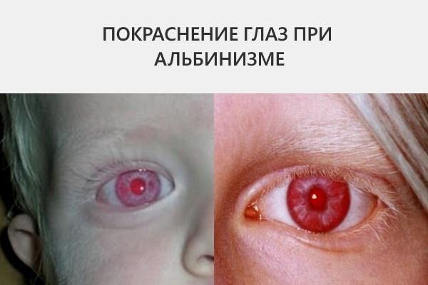 Глаза у альбиноса