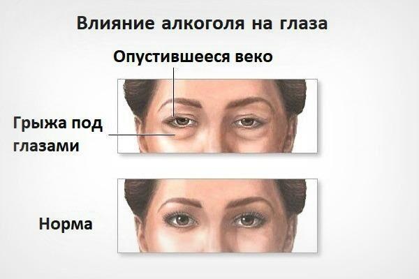 Влияние алкоголя на глаза