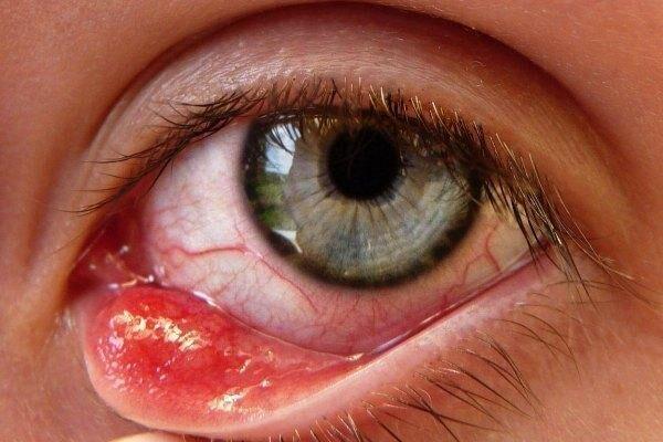 Киста конъюнктивы глаза