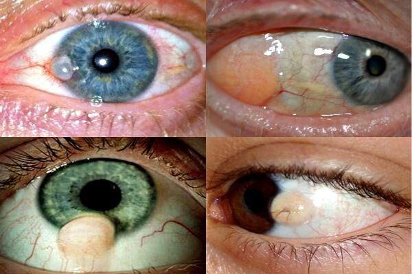 Виды глазной кисты