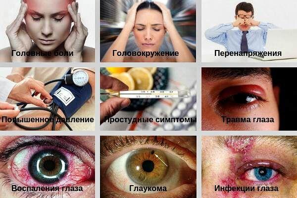 Сопутствующие симптомы боли глазного яблока