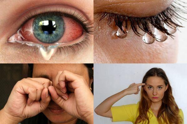 Проявление боли в уголках глаз