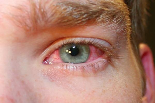 Покраснели и болят глаза с утра