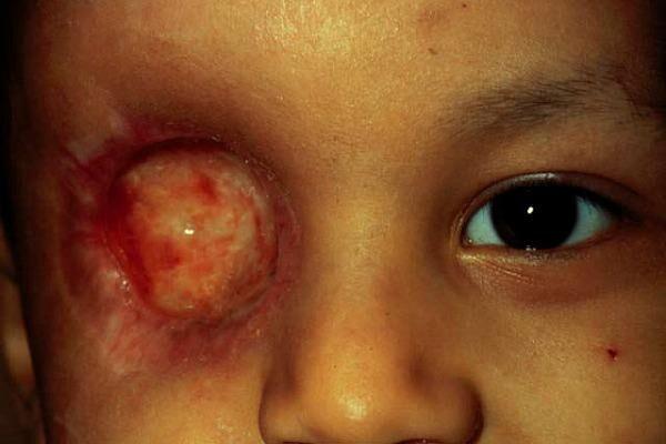 Ретинобластома одного глаза