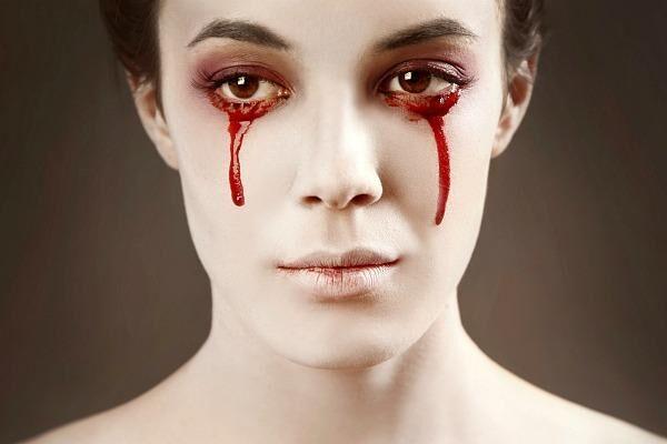 Кровь идет из глаз