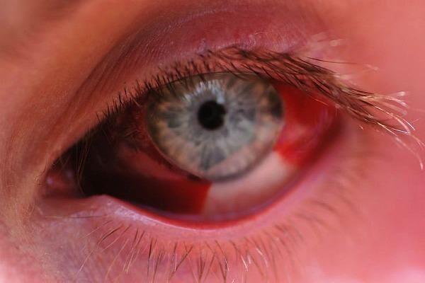 Причины покраснения глаз у взрослых