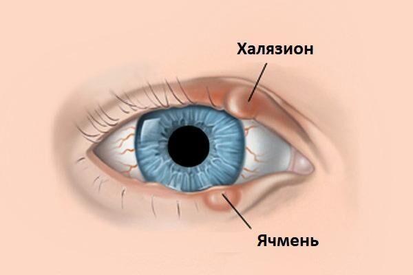 Халязион и ячмень глаза