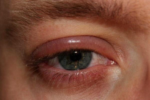Блефарит глаза