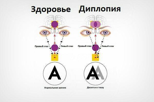Диплопия глаза