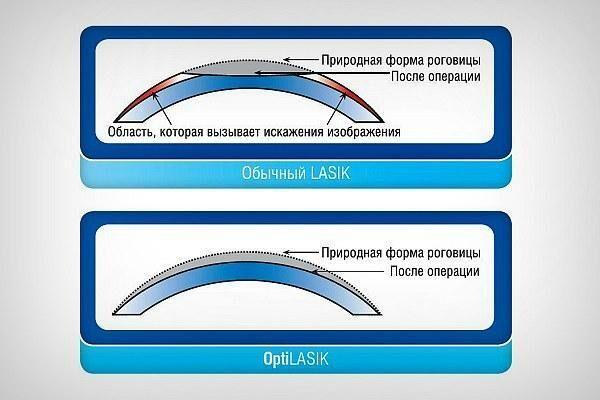 ЛАСИК (Opti LASIK)