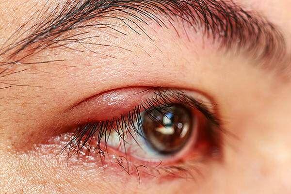 Абсцесс века глаза