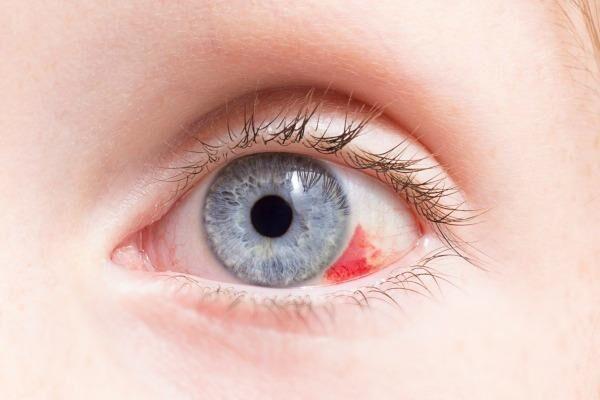 Разрыв сосудов глаза