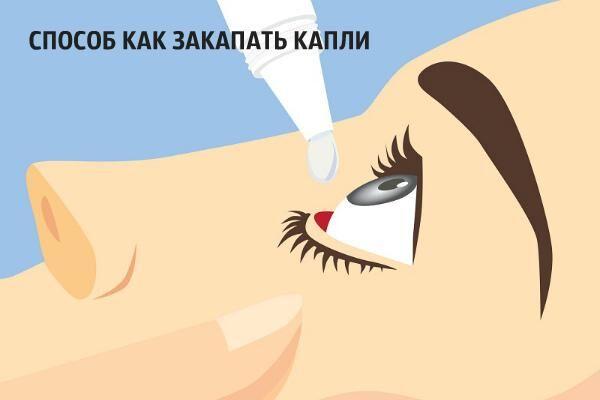 Способ как закапать капли в глаза