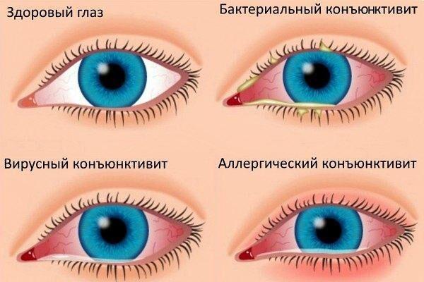 Зуд в глазах, покраснение и жжение при конъюнктивите