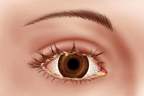 Симптомы блефароконъюнктивита