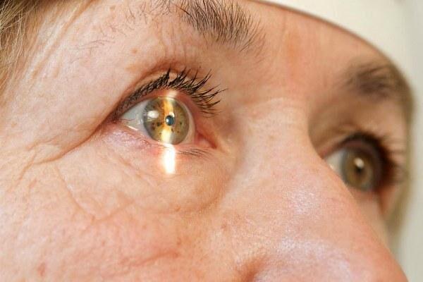 Удаление помутневшего хрусталика при катаракте