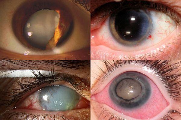 Виды посттравматической катаракты по характеру повреждения