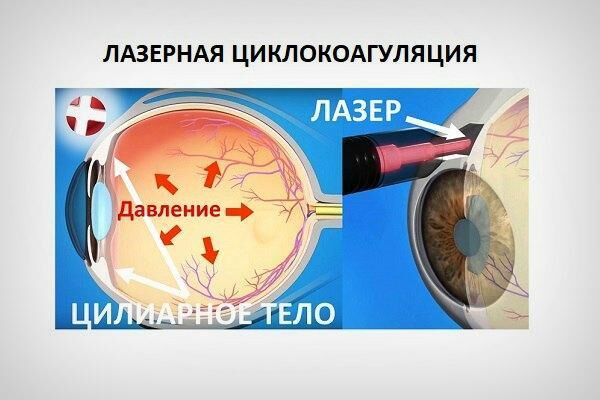 Лазерная циклокоагуляция