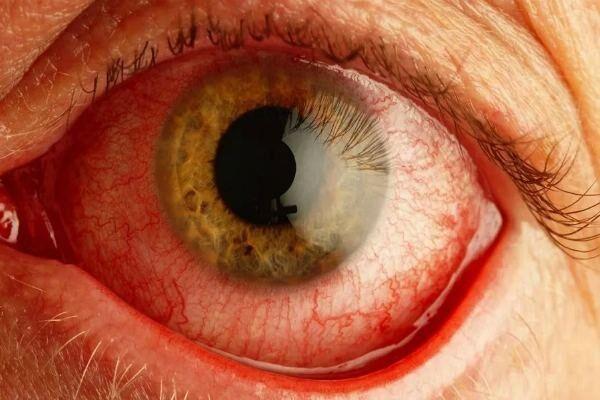 Боль и покраснение глаза