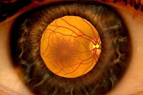 Сетчатка глаза отек