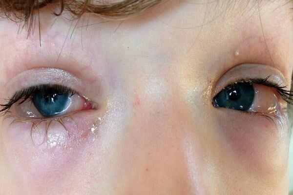 Отек и гиперемия конъюнктивы у ребенка
