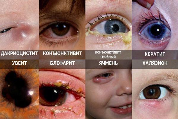 Инфекционные заболевания глаз у детей