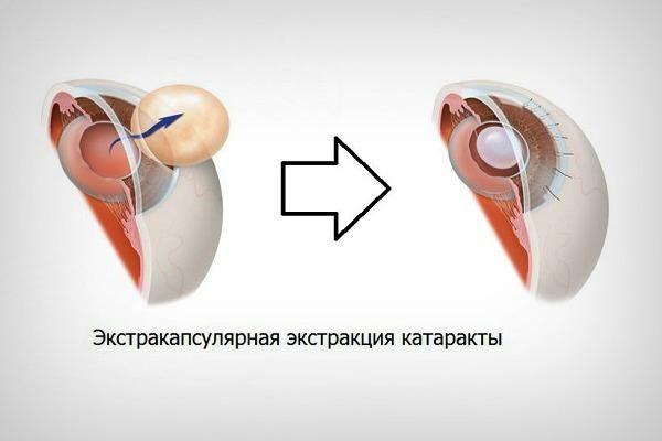 Эстракапсулярноая экстракция катаракты