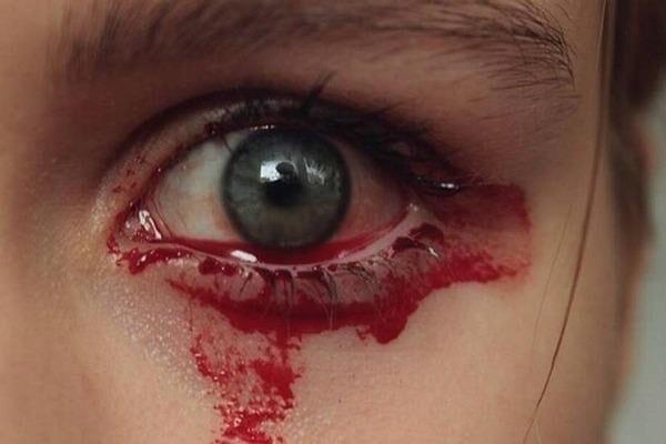 Течет кровь из глаза