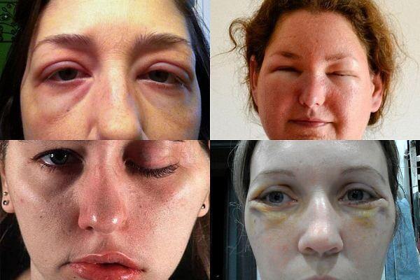 Отекли глаза после введения ботокса