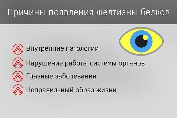 Причины появления желтизны белков глаз