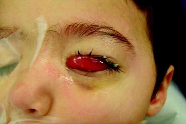 Лечение ретинобластомы у детей