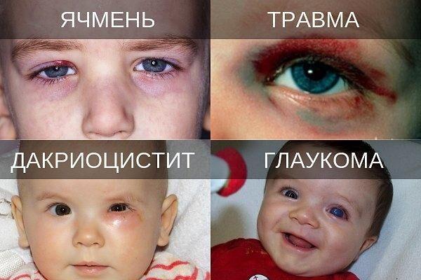 Глазные заболевания у детей