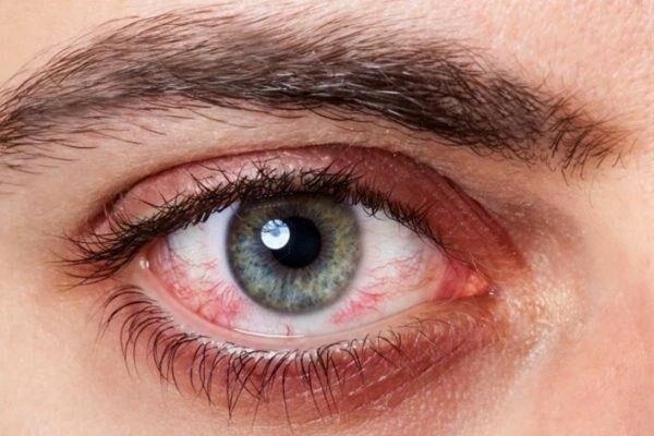 Покраснения вокруг глаз