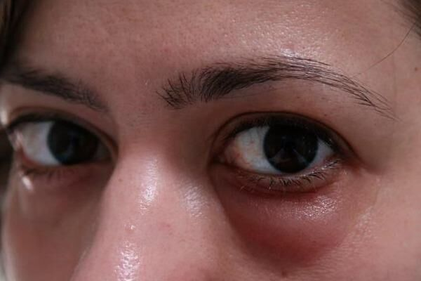 Причины отеков кожи вокруг глаз