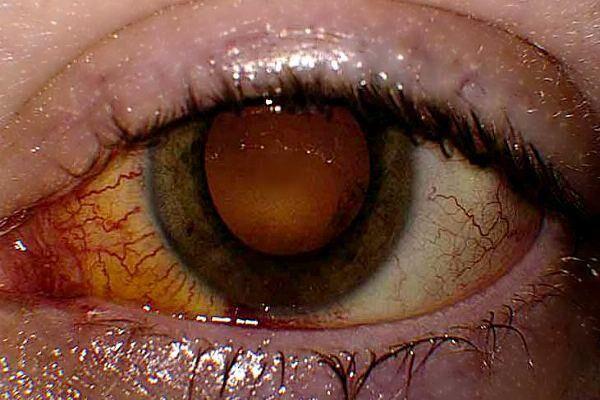Глаз с патологией хориоретинит