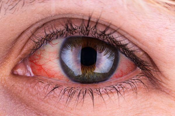 Красные пятна на глазу