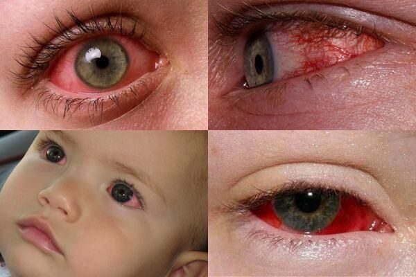 Покрасневшие белки глаз
